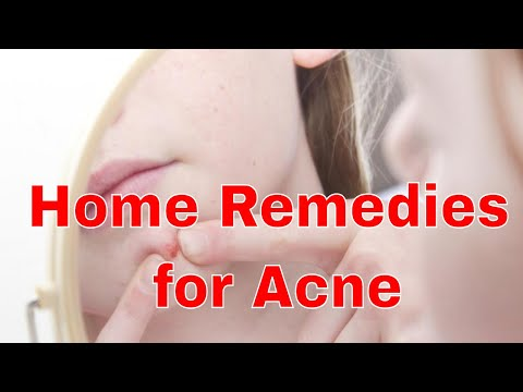 What are Home Remedies for Acne and Pimples?0-2