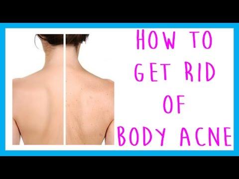 faq-how-to-get-rid-of-body-acne-back-acne-chest-acne-leg-acne-arm-acne