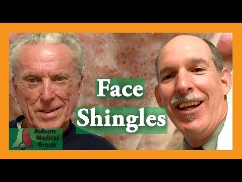 Face Shingles Treatment
