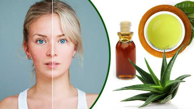 acne-rosacea-natural-treatment-and-diet