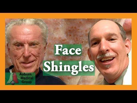 Face Shingles Treatment