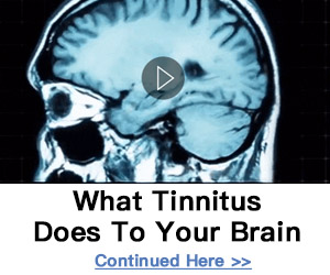 graphics depicting human brain related to ringing in ear - tinnitus